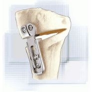 IMPLANT MODULAIRE OSTEO+